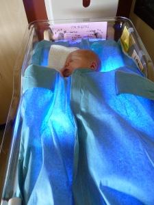 terapi biliblanket  dengan selimut yang mengandung serat optik dan sinar biru